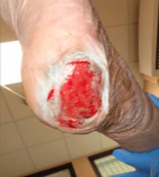 Ulcera-da-decubito-2