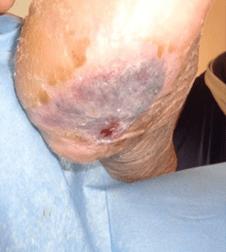 Ulcera-da-decubito-3