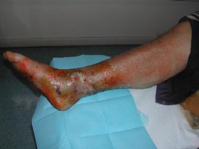 innesto di pelle (prima)