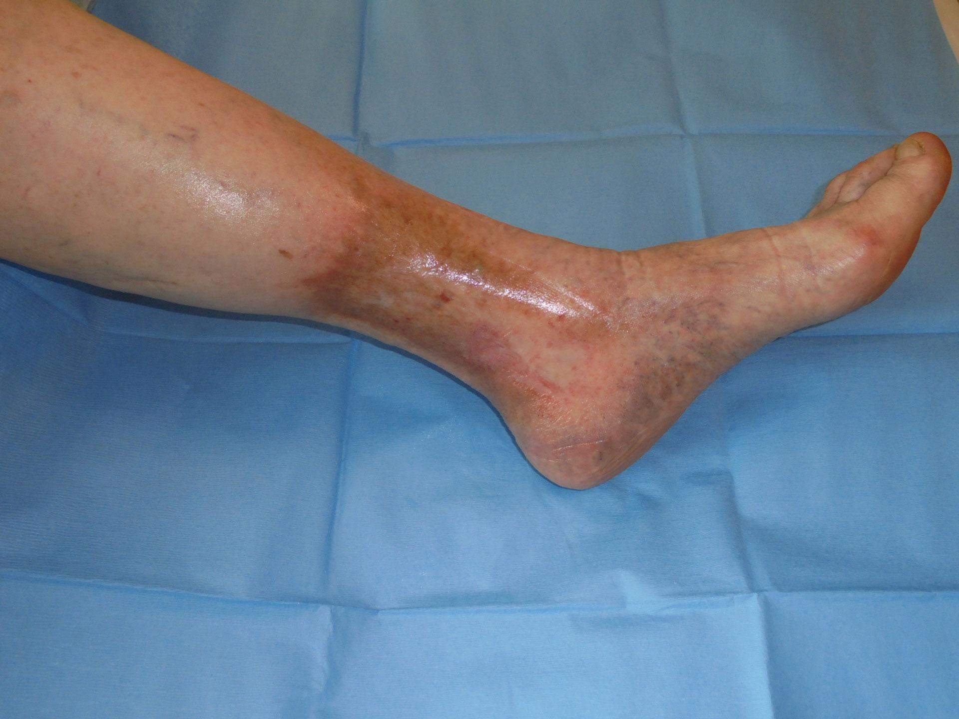 lesione-flebolinfo-3
