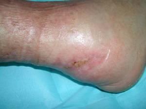 lesioni-tissutali-2