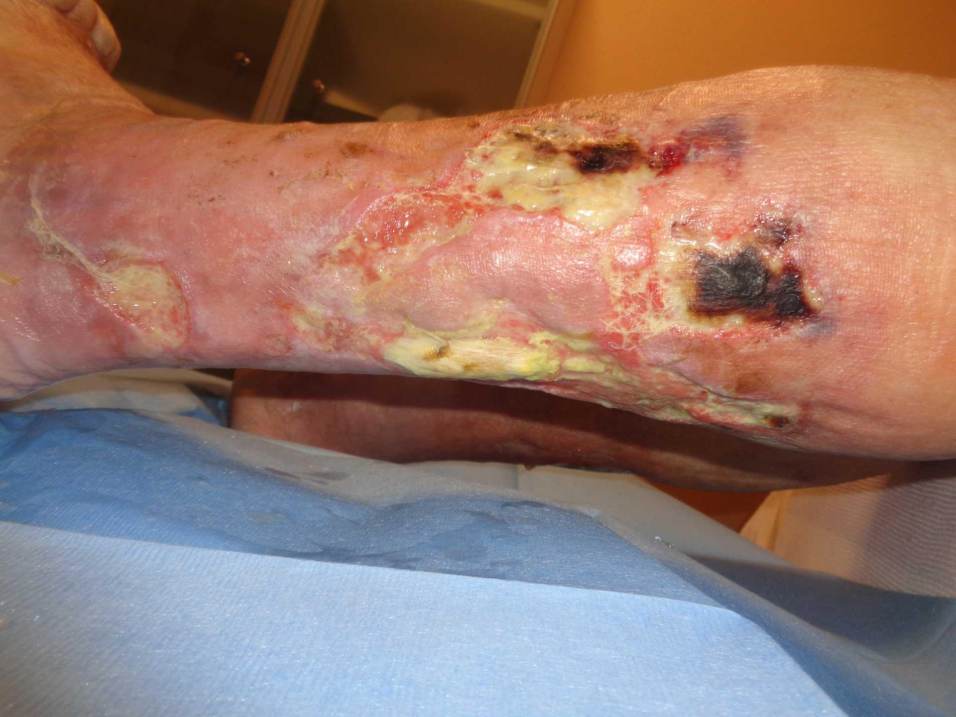 ulcera-arteriosa-1