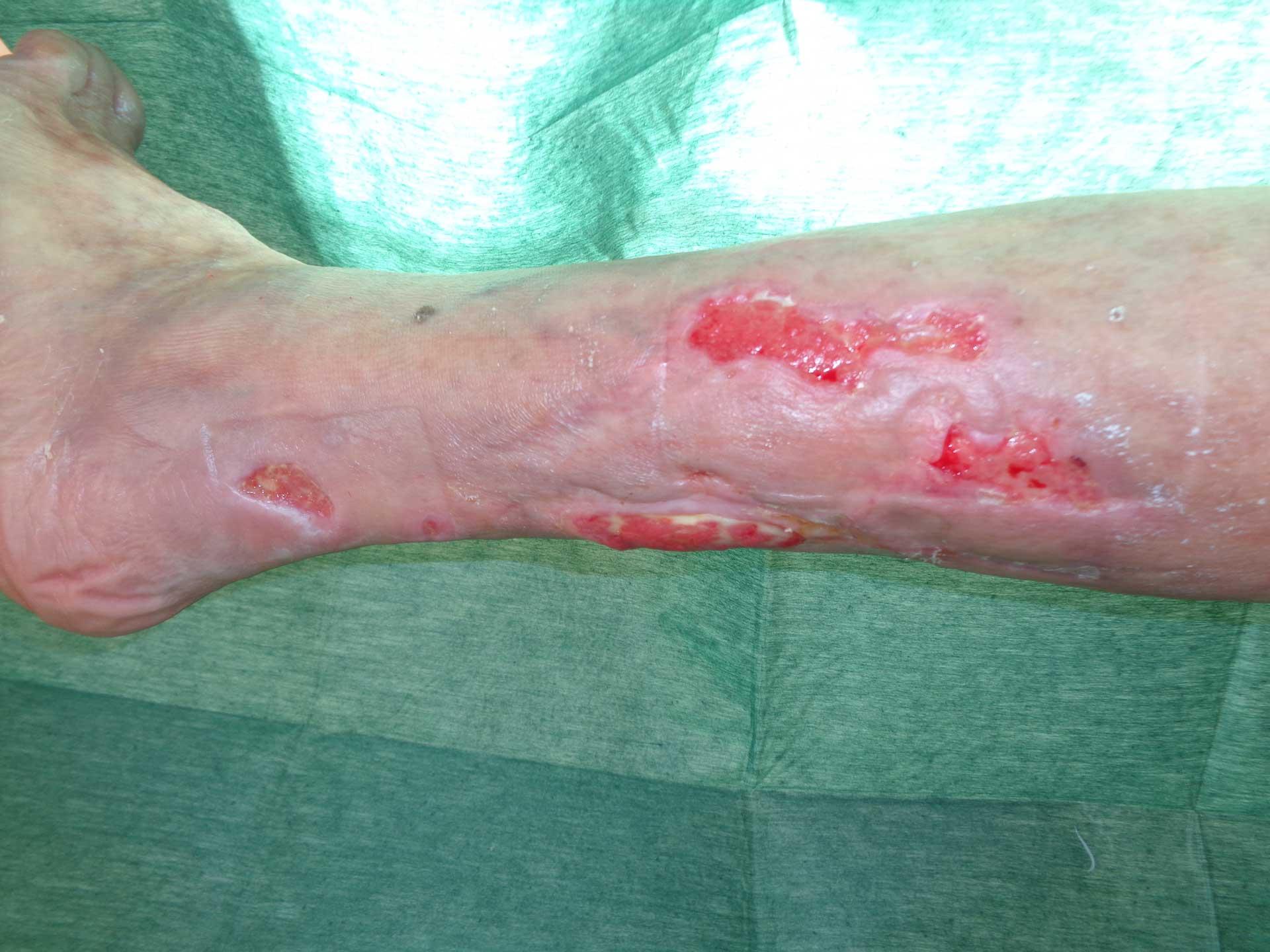 ulcera-arteriosa-2