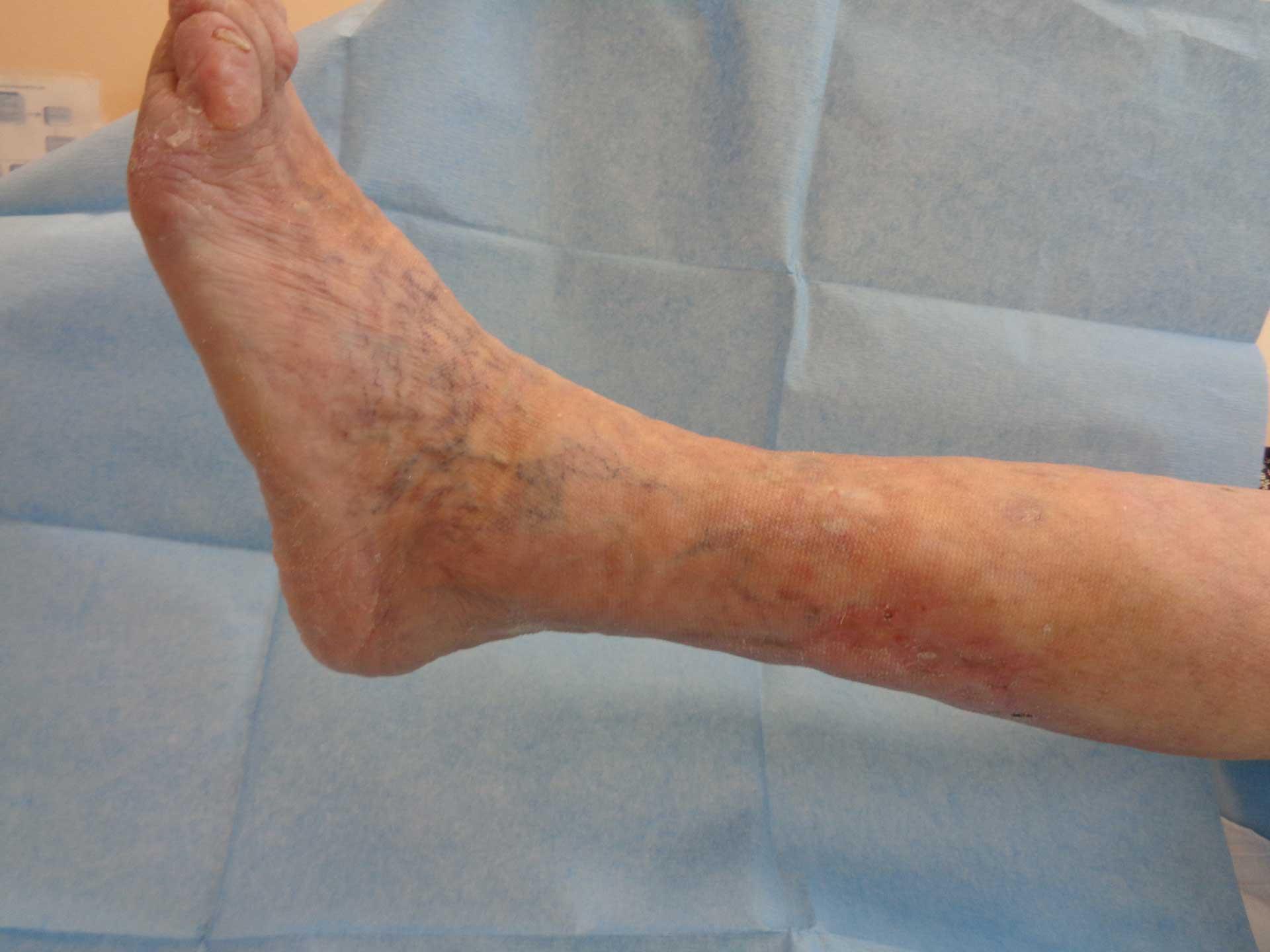 ulcera-arteriosa-3