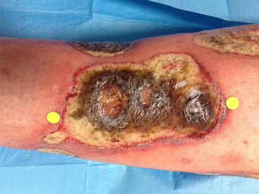 ulcera-reumatica-fase-attiva