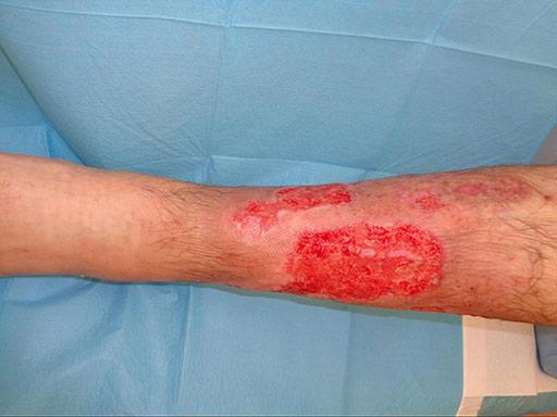 ulcera-reumatica-remissione